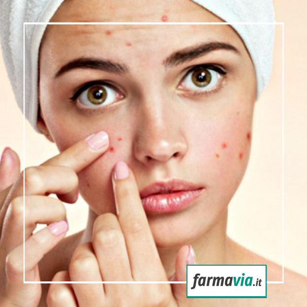 Sole e mare fanno bene a chi soffre di acne?